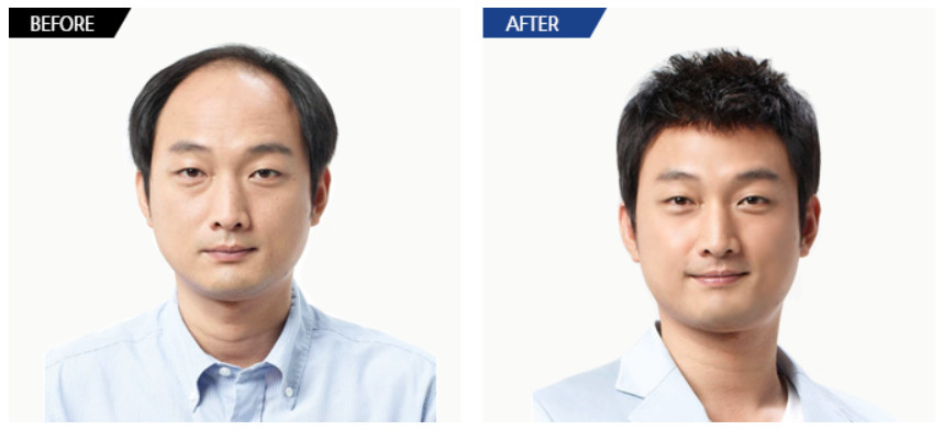 beforeafter11