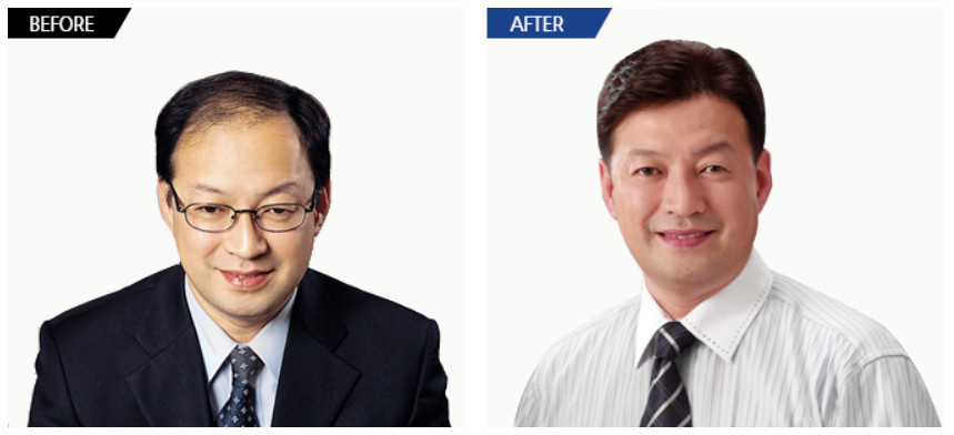 beforeafter5