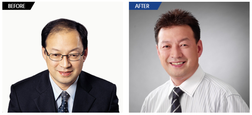 beforeafter9